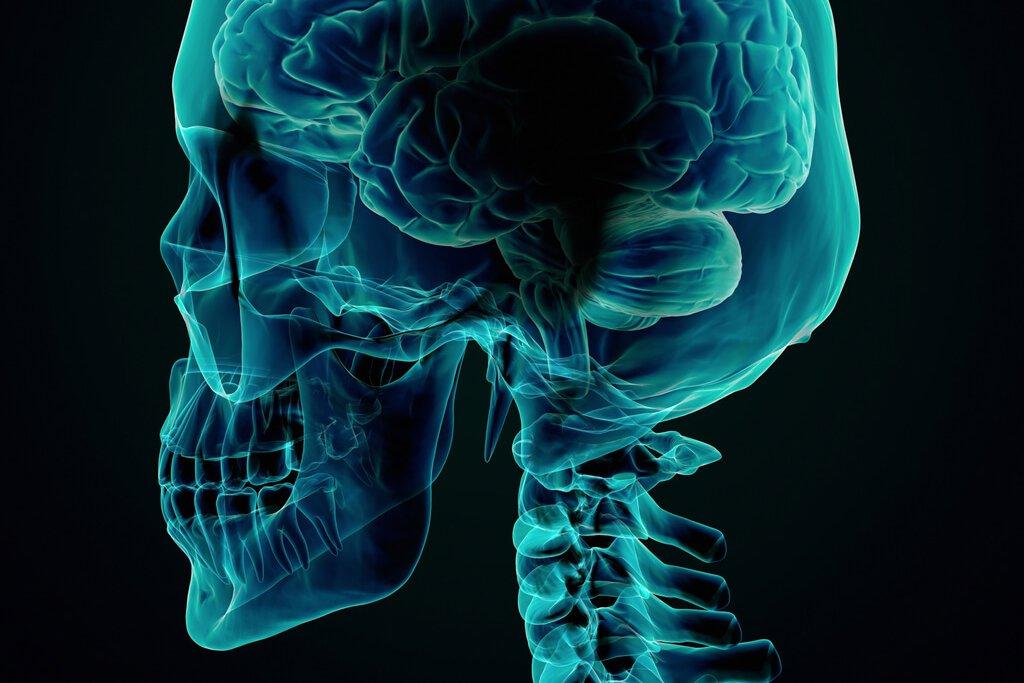 Cranial Nerve Blocks